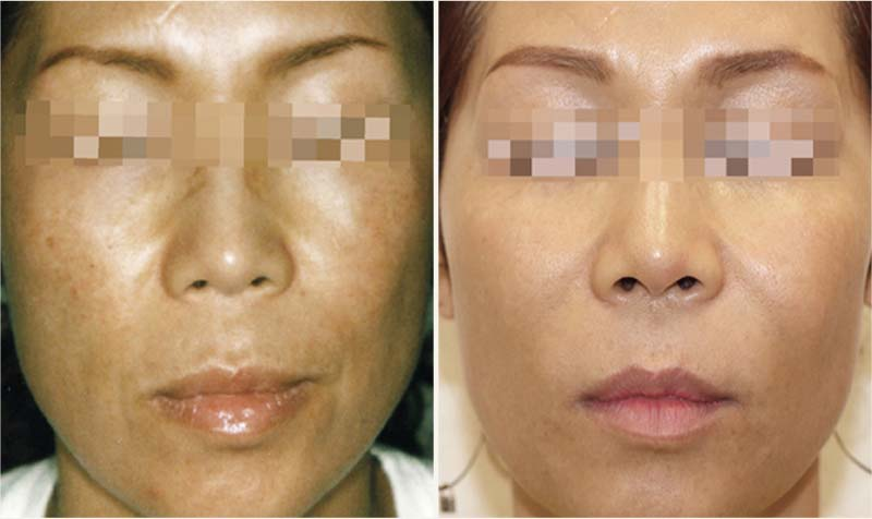 Green Peel (before after)