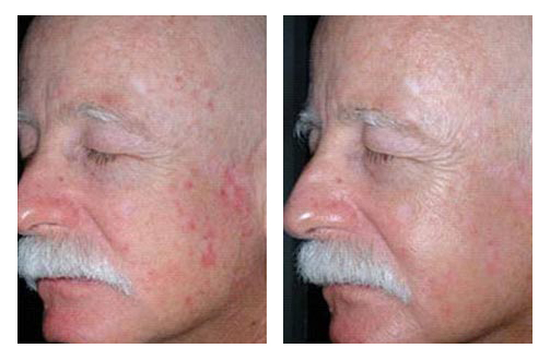 Daylight photodynamic therapy (Before | After)