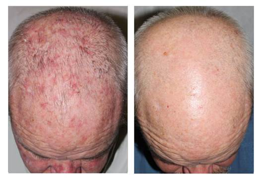 Pre-malignancies and skin malignancies (Before | After)