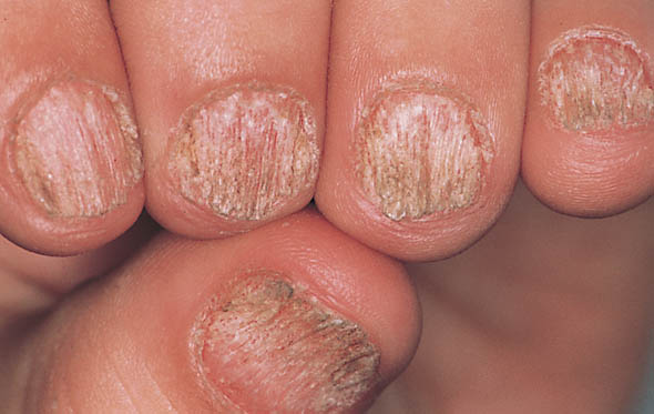 Nail dystrophies