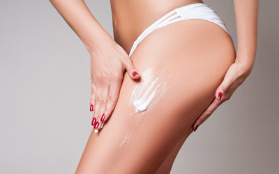 Stretch marks – Anyone can develop them…