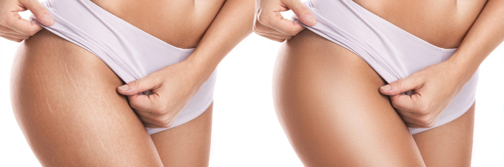 stretchmarks_before_after