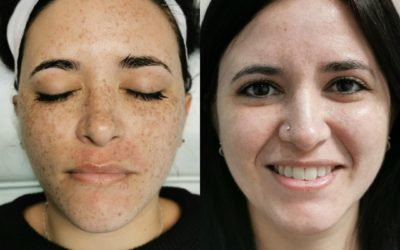 What is the difference between BBL and Dermapen!