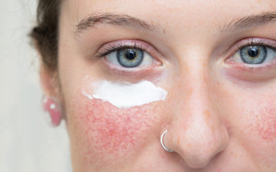 What is Rosacea, and how you can treat it!